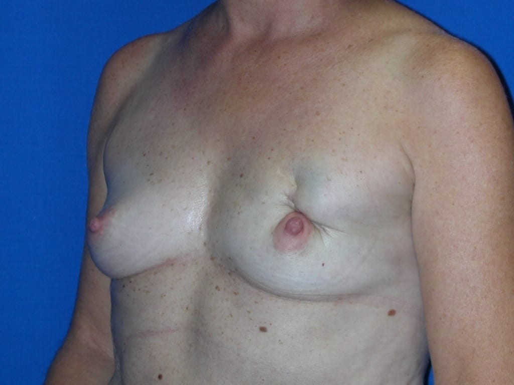 Breast Reconstruction Patient Photo - Case 77 - before view-1
