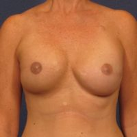Breast Reconstruction - Case 144 - After