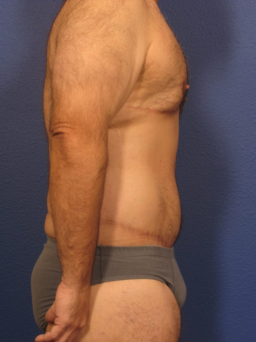 Before and After (for Men) Patient Photo - Case 175 - after view-1