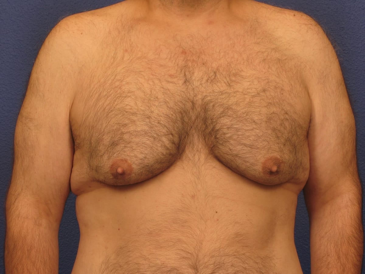 Before and After (for Men) Patient Photo - Case 175 - before view-