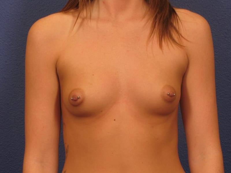 Breast Augmentation Patient Photo - Case 200 - before view-2
