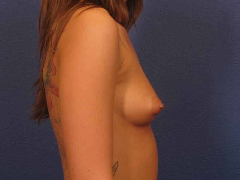 Breast Augmentation Patient Photo - Case 200 - before view-