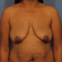 Breast Lift - Case 338 - Before