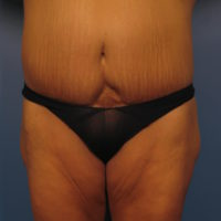 Tummy Tuck Revision - Case 354 - Before