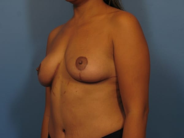 Tummy Tuck Patient Photo - Case 356 - after view-3