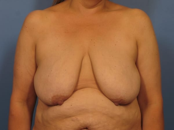 After Major Weight Loss Patient Photo - Case 372 - before view-0
