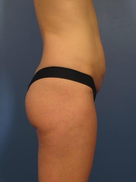 Breast Augmentation with Lift Patient Photo - Case 327 - before view-1