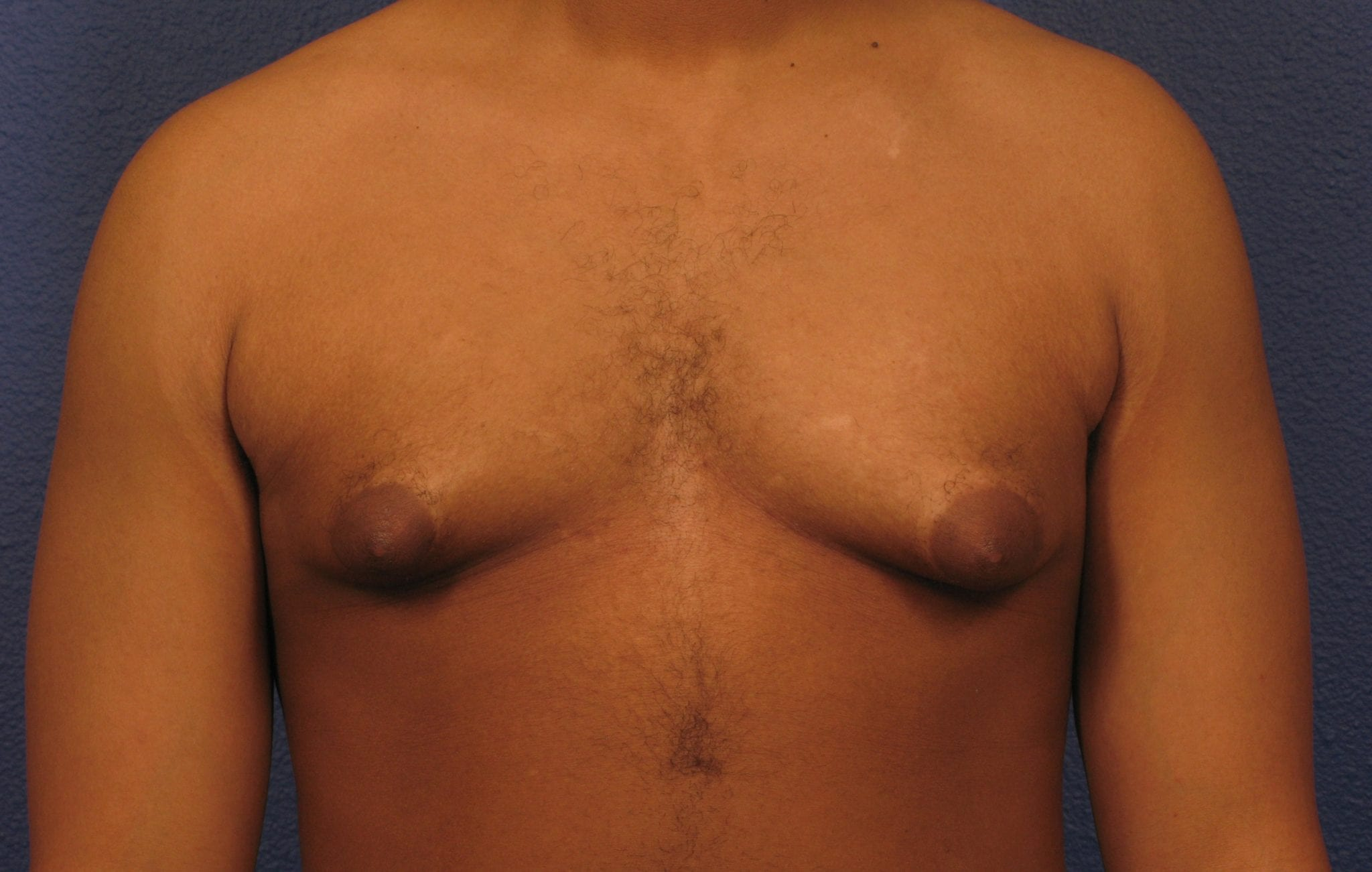 Before and After (for Men) Patient Photo - Case 376 - before view-1