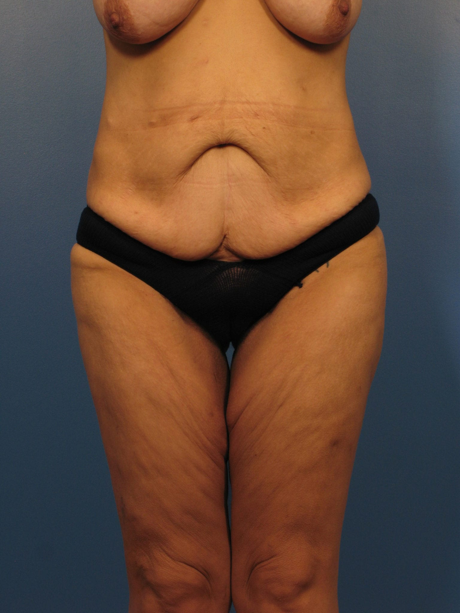 Breast Lift Patient Photo - Case 395 - before view-2