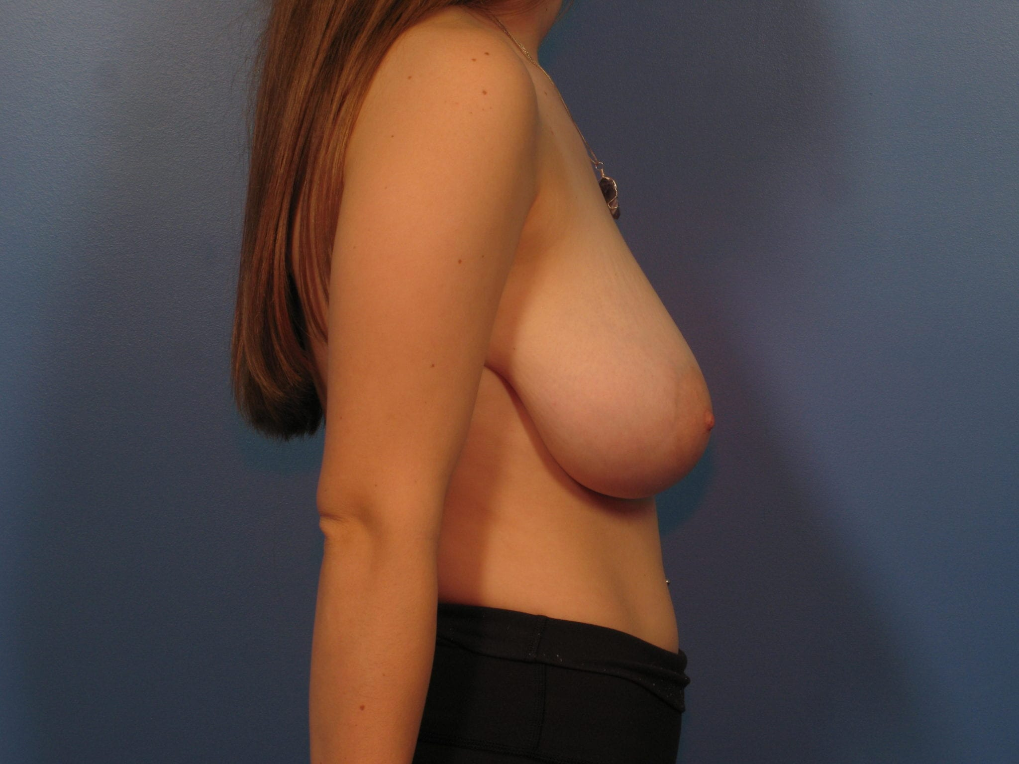 Breast Reduction Patient Photo - Case 404 - before view-1