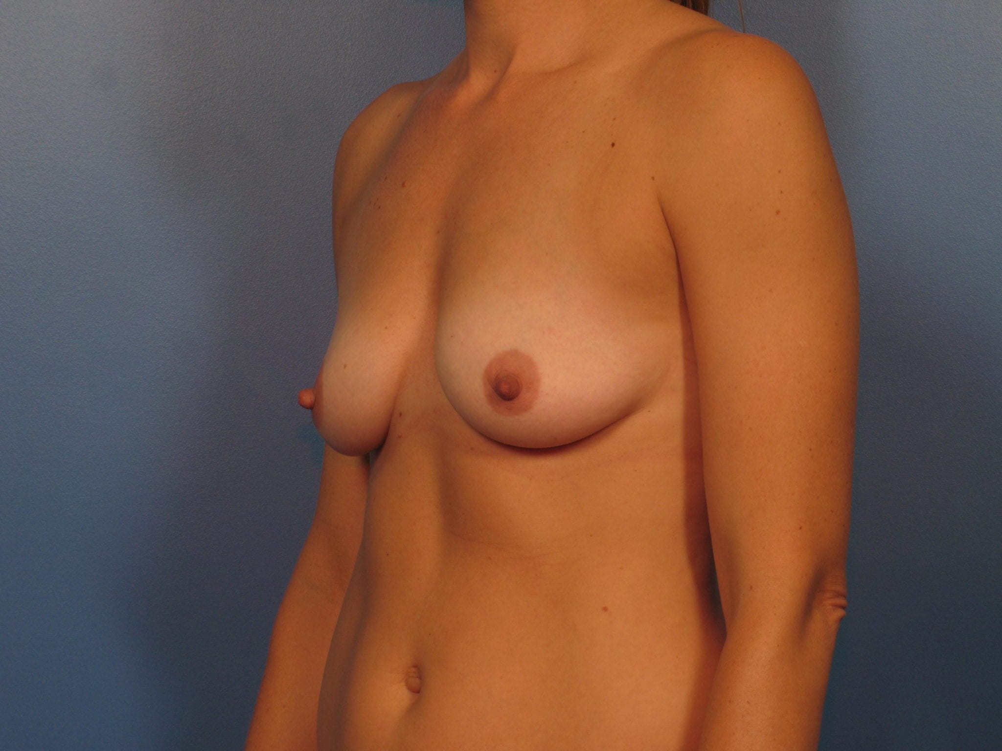 Breast Augmentation Patient Photo - Case 409 - before view-2