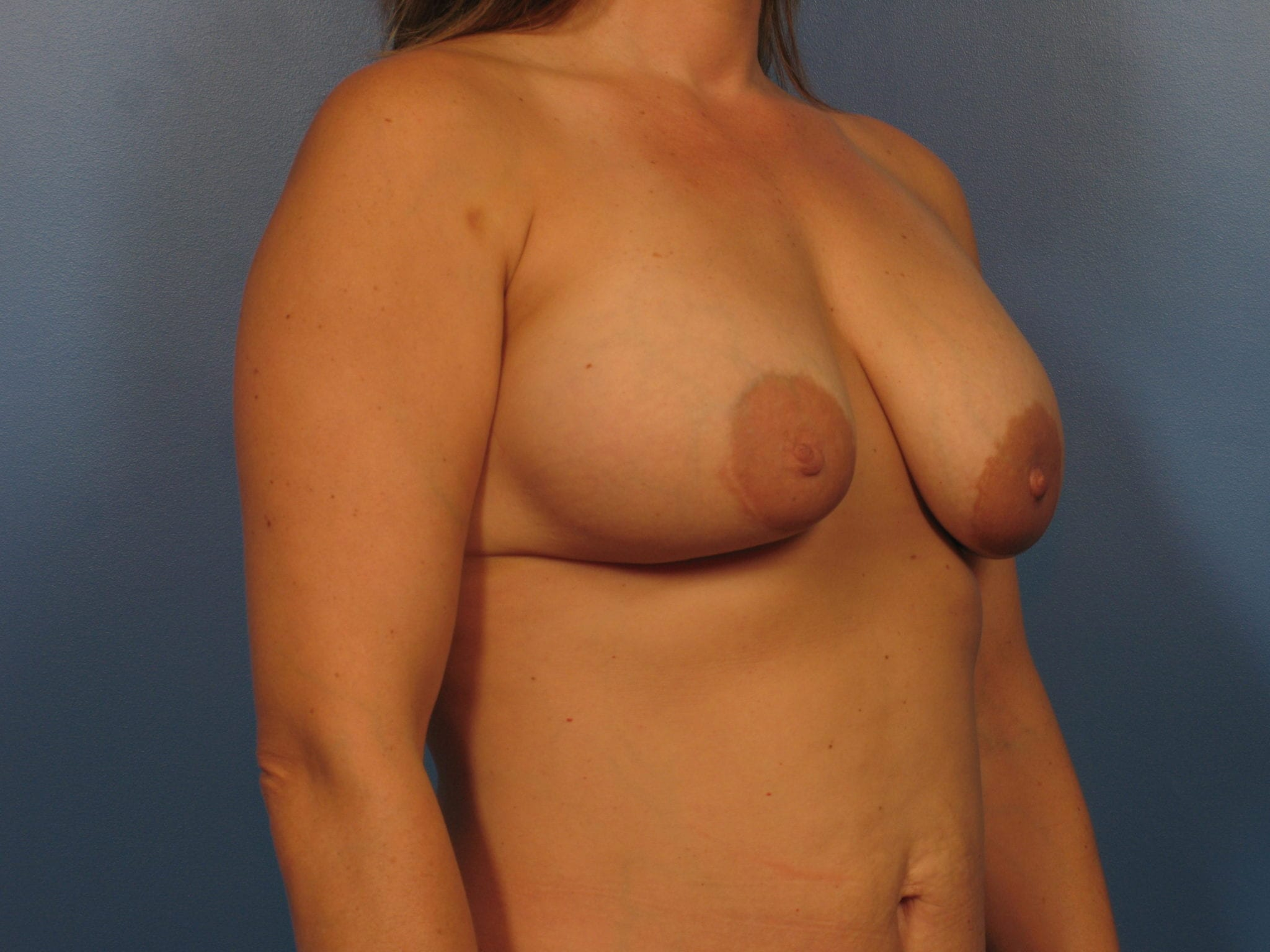 Breast Augmentation with Lift Patient Photo - Case 410a - before view-2