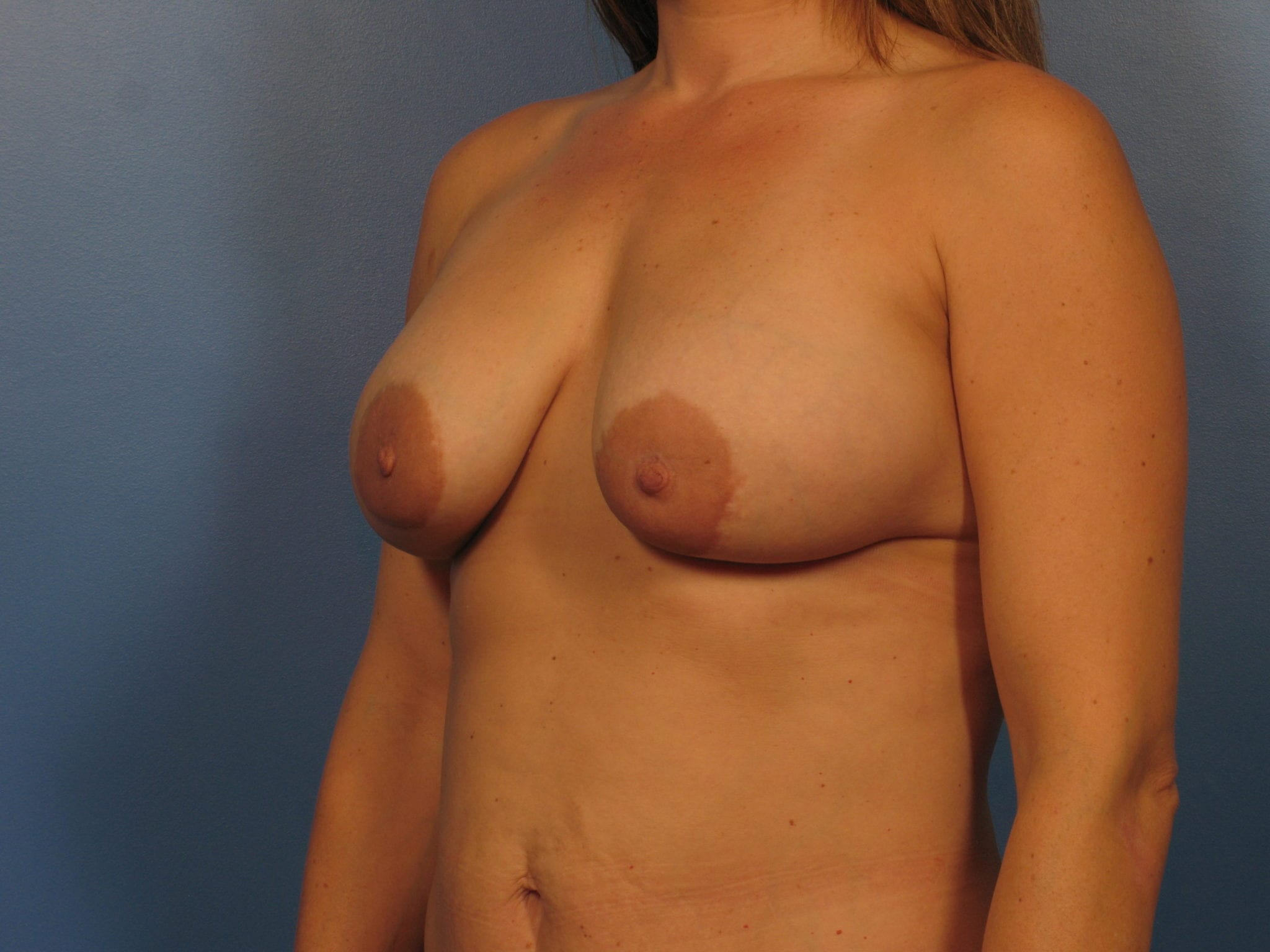 Breast Augmentation with Lift Patient Photo - Case 410a - before view-1