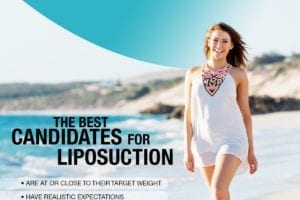 The Best Candidates for Liposuction [Infographic]