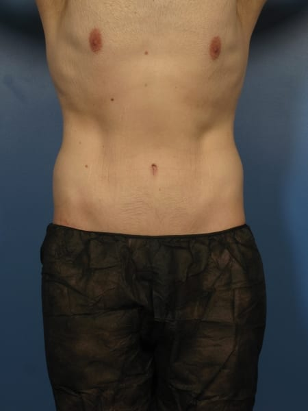 After Major Weight Loss Patient Photo - Case 428 - after view