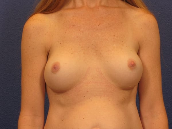 Breast Revision Patient Photo - Case 98 - before view-