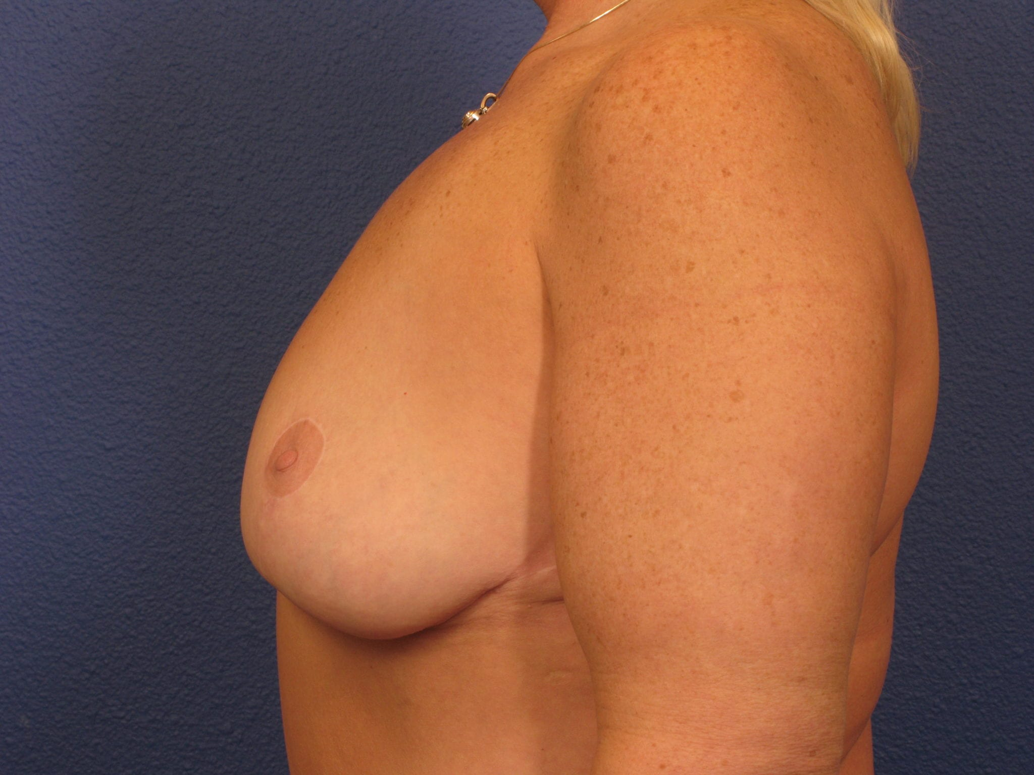 Breast Revision Patient Photo - Case 159 - after view-1