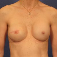 Breast Reconstruction - Case 240 - After