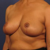 Breast Reduction - Case 245 - After