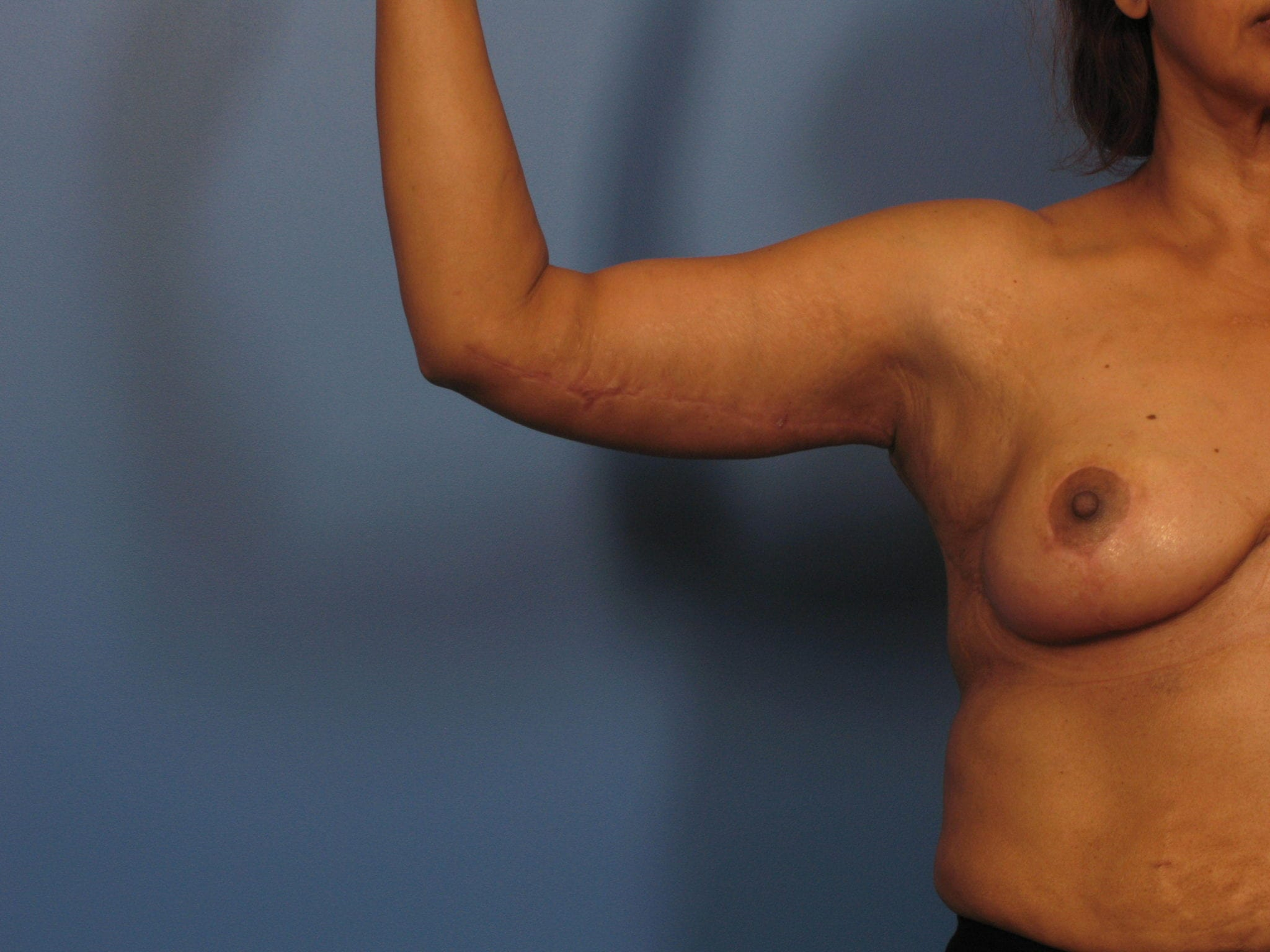 After Major Weight Loss Patient Photo - Case 325 - after view-1