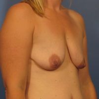 Breast Augmentation with Lift - Case 327 - Before