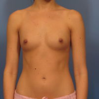 Breast Augmentation - Case 329 - Before