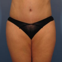 Tummy Tuck - Case 359 - After