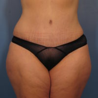 Tummy Tuck - Case 362 - After