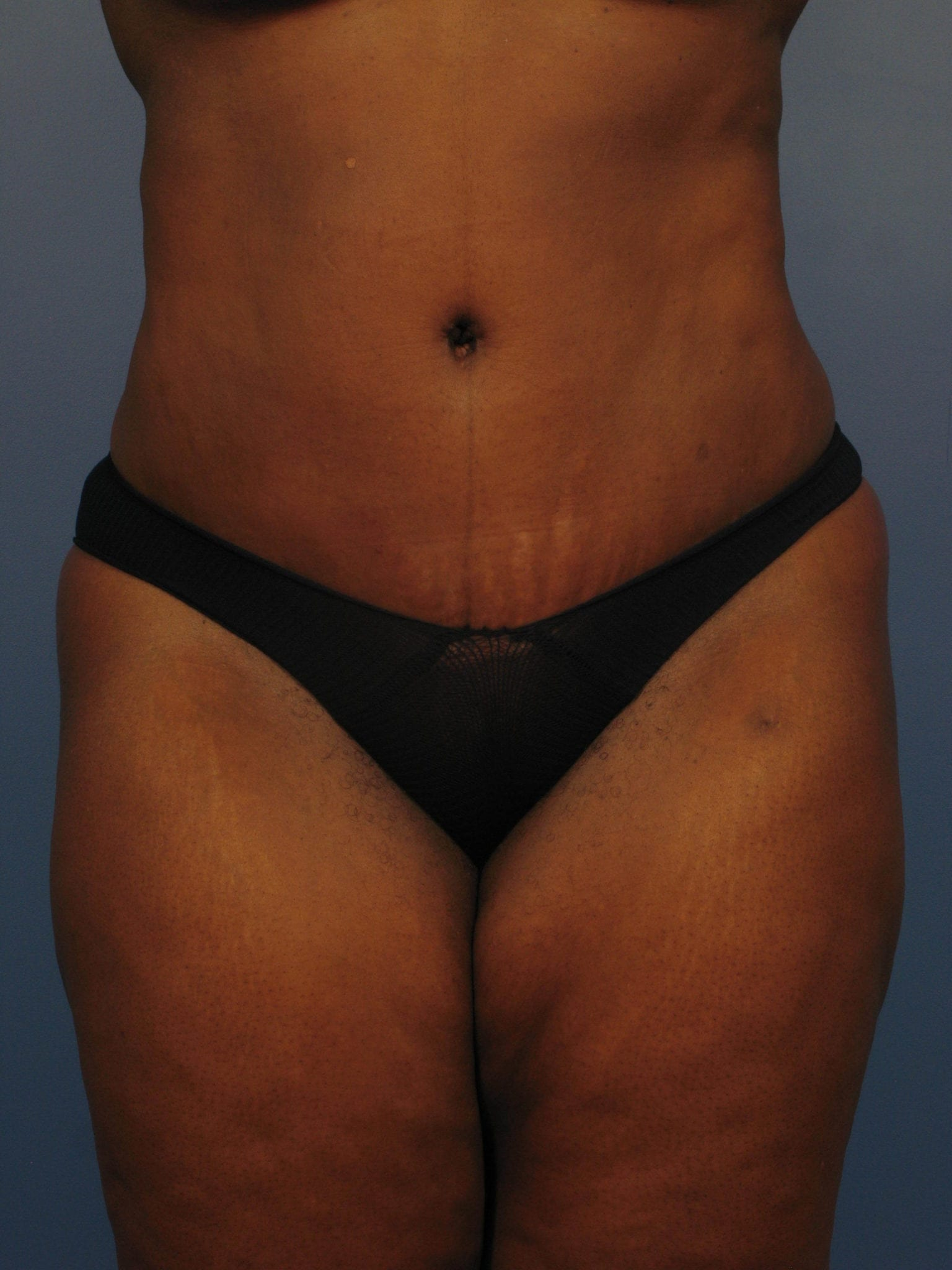 Tummy Tuck Patient Photo - Case 363 - after view